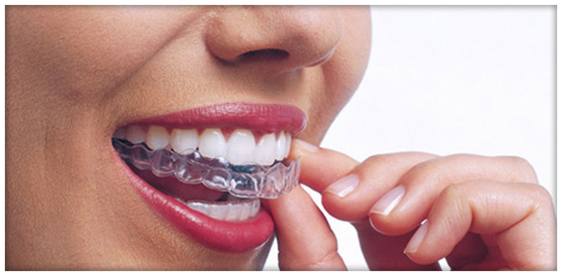 Da odontomil capire i vantaggi dello gnatologo Arona