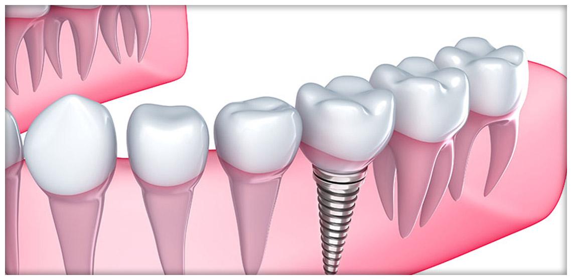Da odontomil per i vostri impianti dentali Viale Corsica Milano