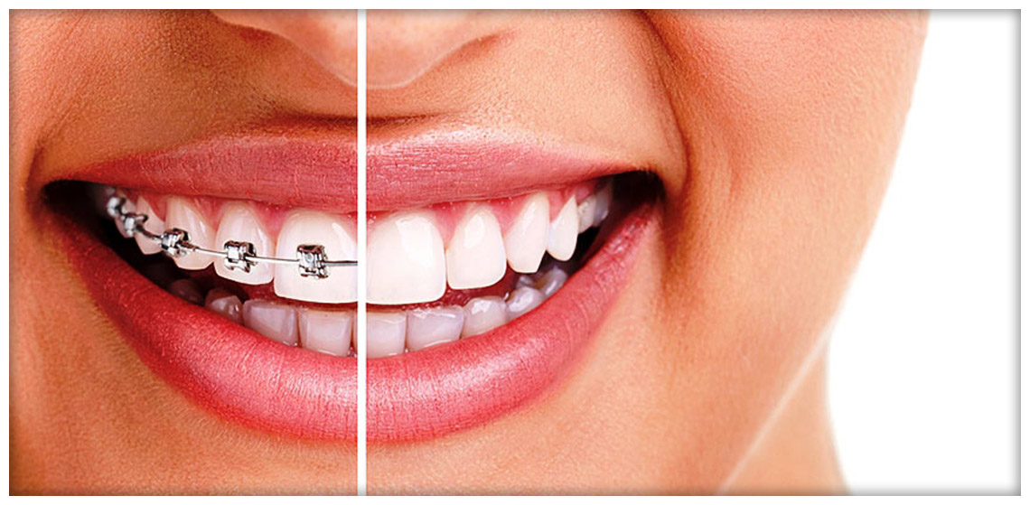 Da odontomil per la vostra Ortodonzia Milano