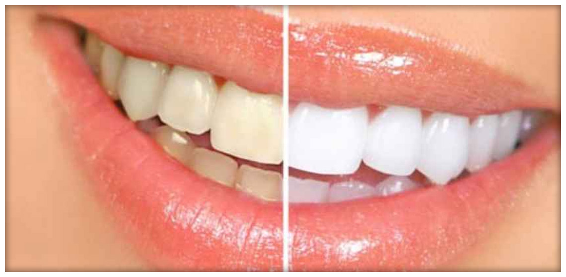sbiancamento dentali